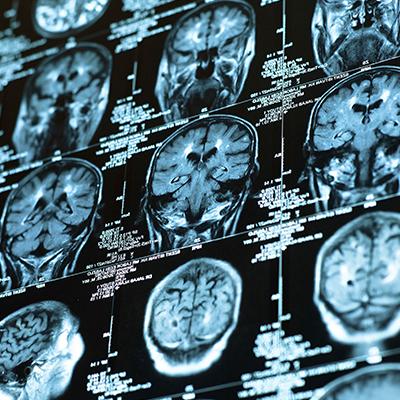 Ciencia-mejora-cognitiva